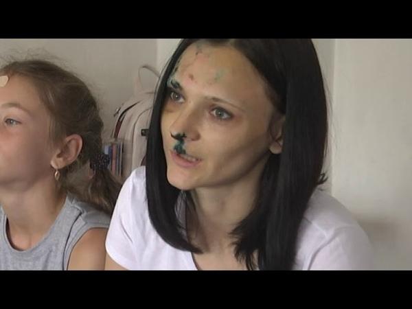 У містечку Олевськ нетверезий коп влаштував карколомну аварію постраждала дитина