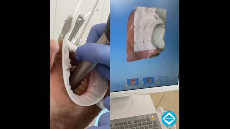 Внутриротовой сканер заменит слепки зубов