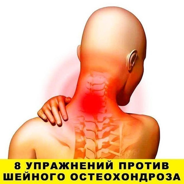 """Первые проявления шейного остеохондроза  боли в спине, головные боли, головокружение, """"мушки"""" в глазах, ухудшение слуха или шумы, а также покачивание при ходьбе в результате нарушения координации"""