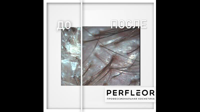 Эффективное и безопасное очищение кожи головы с помощью Кислородной эмульсии для очищения кожи головы N8 от PERFLEOR