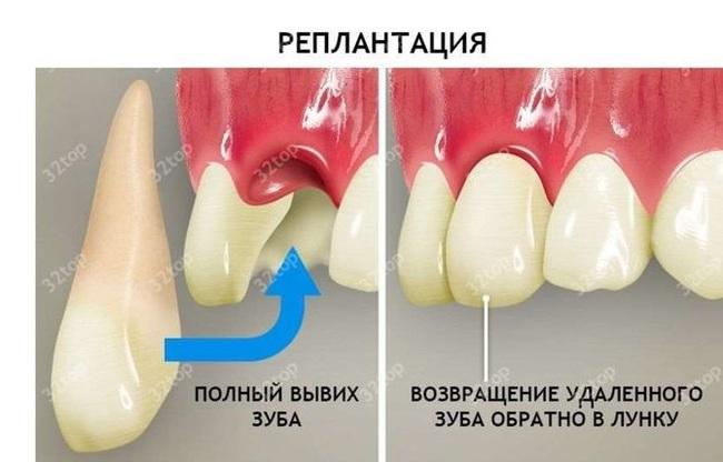 Если выбили зуб