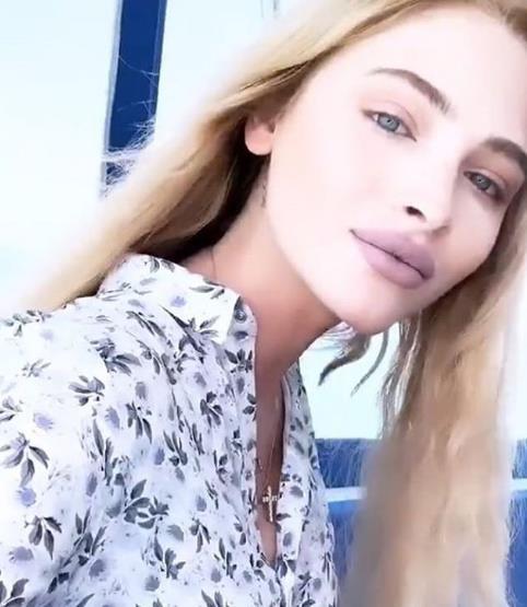 Алена Шишкова увеличила губы еще сильнее!