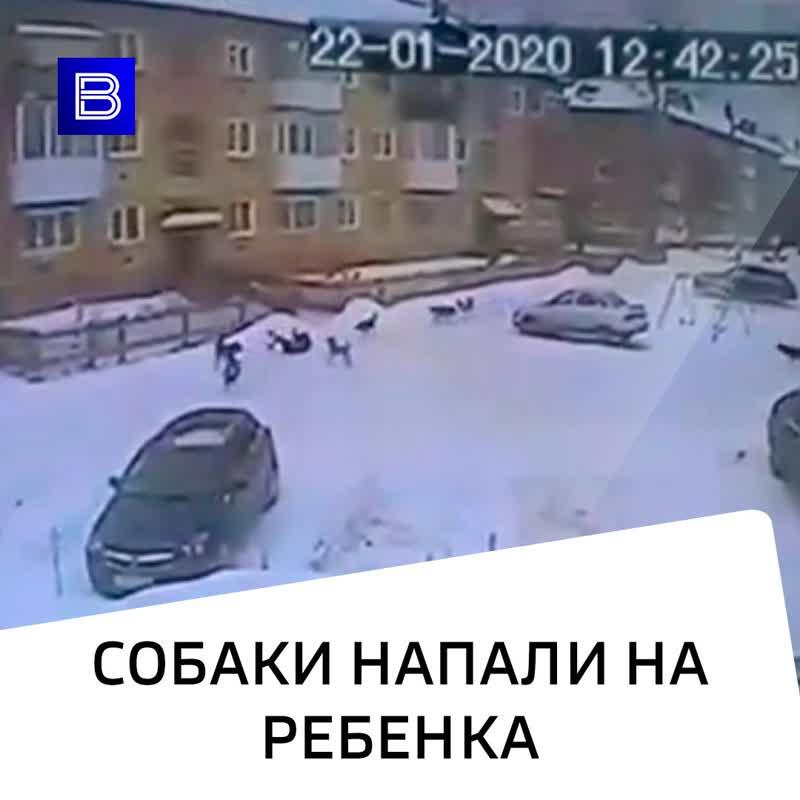 Собаки напали на ребенка