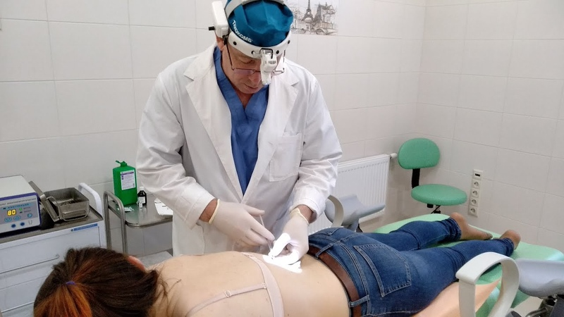 Радиоволновая хирургия в МЦ Сонодин